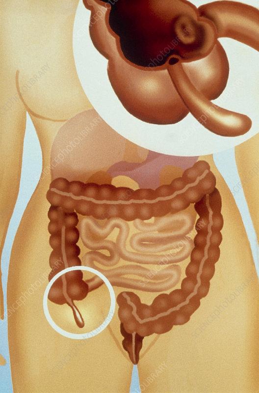 Appendix Anatomy Location