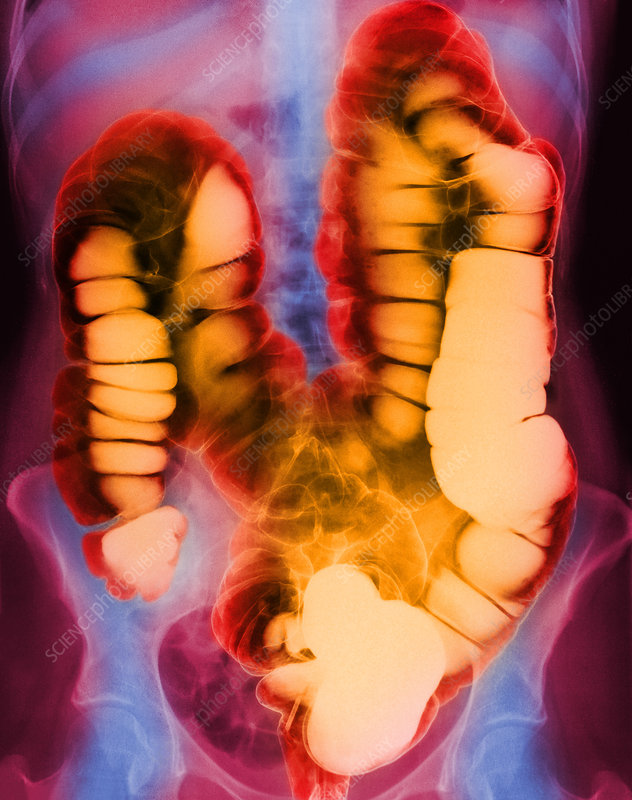 Coloured X-ray of the colon after a barium enema
