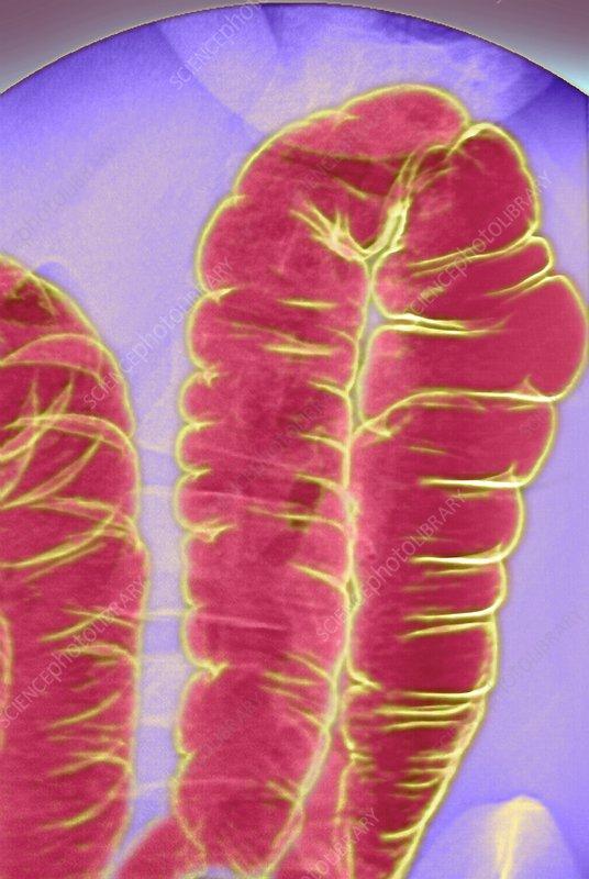 Large intestine, X-ray