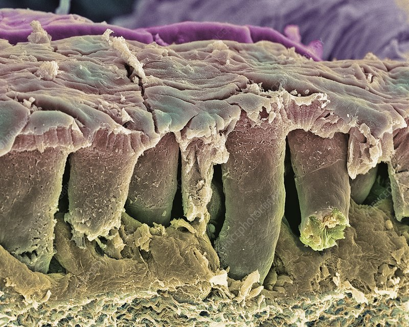 Large intestine lining, SEM