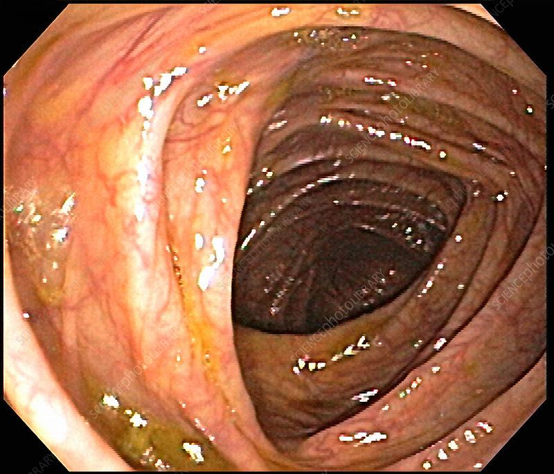 Appendiceal Orifice