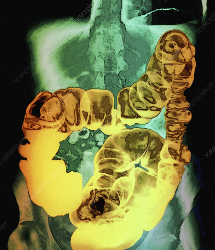 Large intestine, X-ray