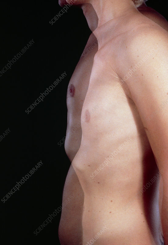 Positions of chest during inspiration & expiration