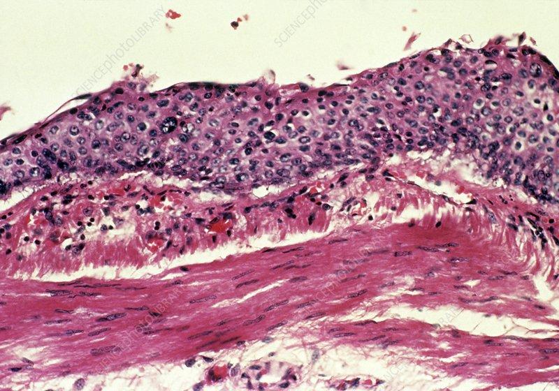 Metaplasia in lungs