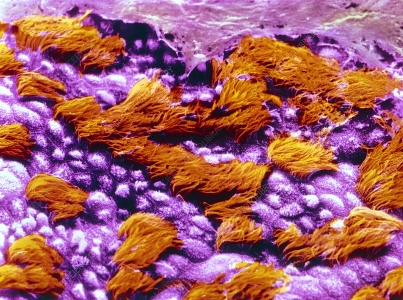 False-colour SEM of human tracheal epithelium
