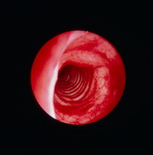 Bronchoscope image of normal trachea