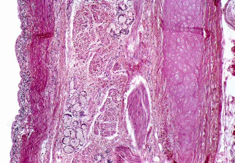 LM of human tracheal epithelium