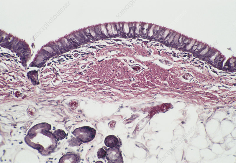 LM of a longitudinal section of the trachea