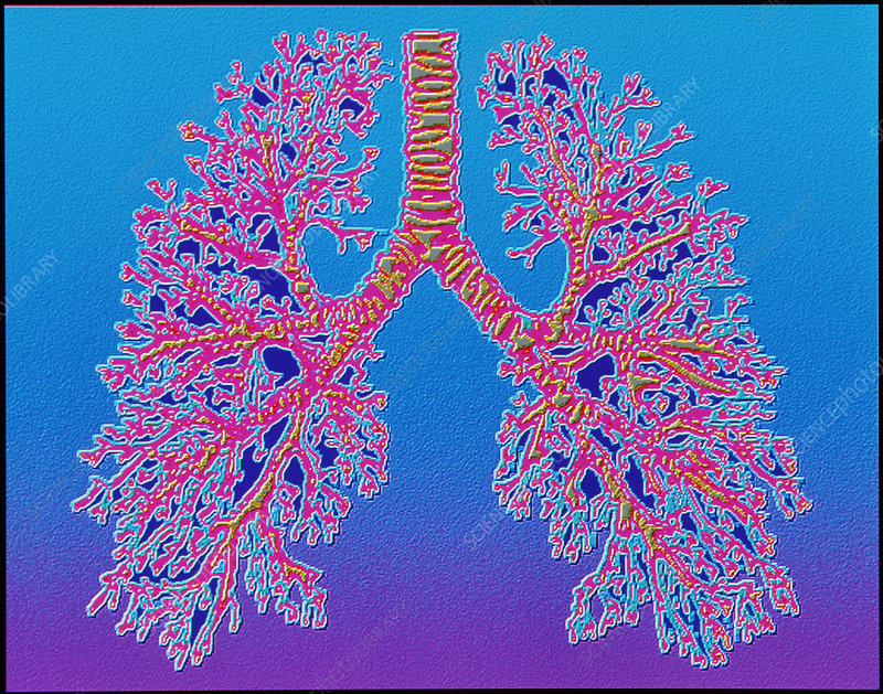 Computer art of human lung trachea & bronchioles