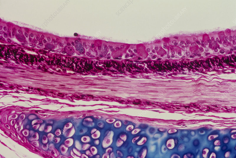 LM of a section through a bronchus of the lung