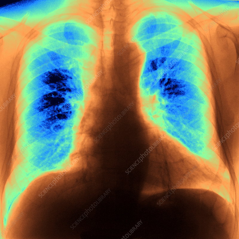 Healthy lungs inhaling, X-ray