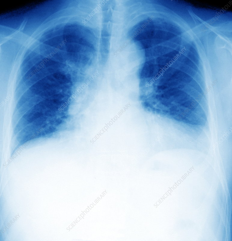 Healthy lungs exhaling, X-ray