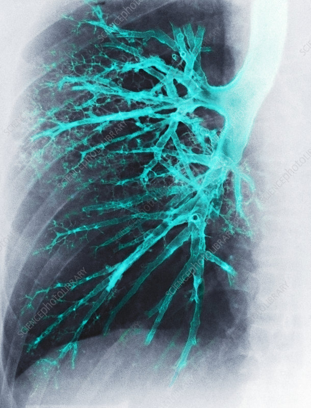 Lung, X-ray
