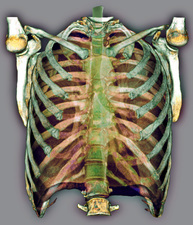Trachea and rib cage, 3D CT scan