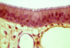 Trachea epithelium, light micrograph