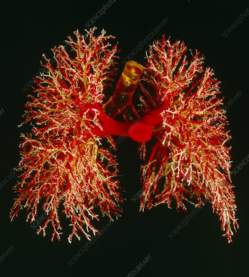 Resin cast of pulmonary arteries and bronchi