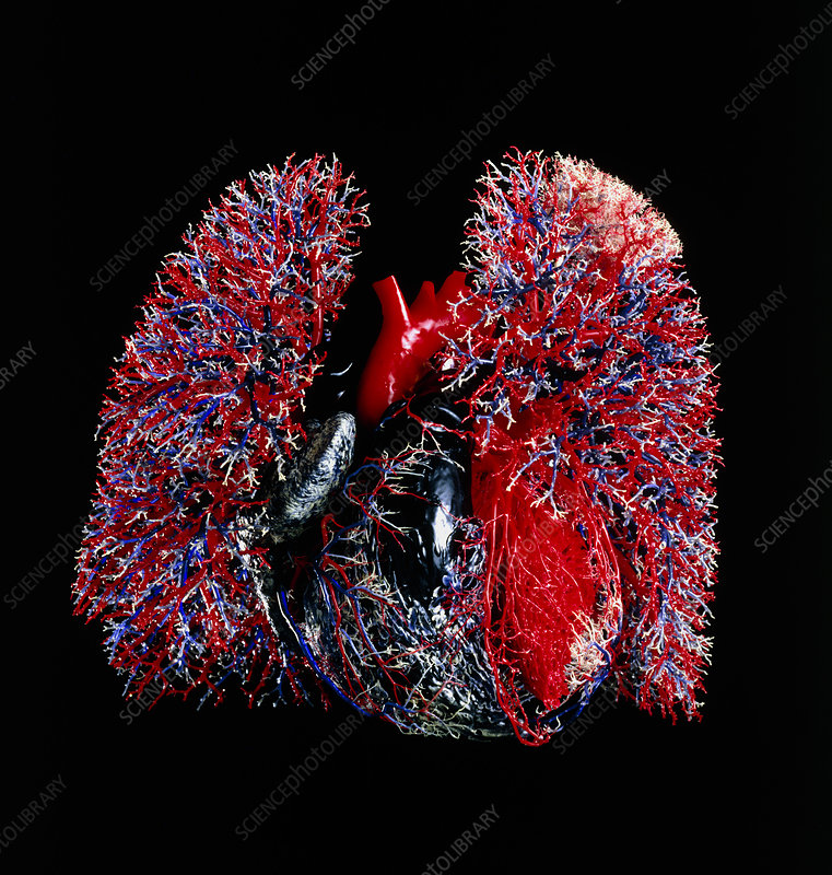 Resin cast of the blood vessels of heart & lungs