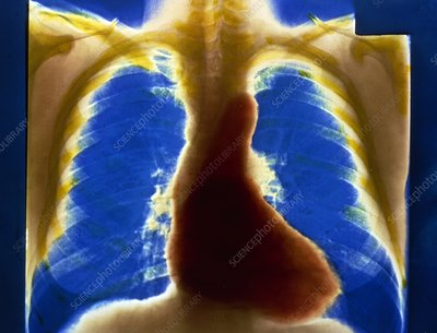 Chest X-ray of normal heart and lungs
