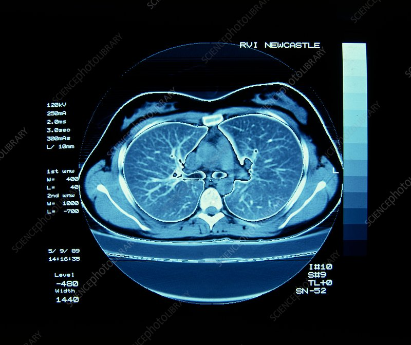 CT scan showing normal lungs
