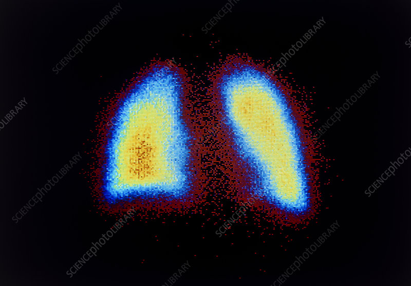 F/col scintigram of normal human lungs