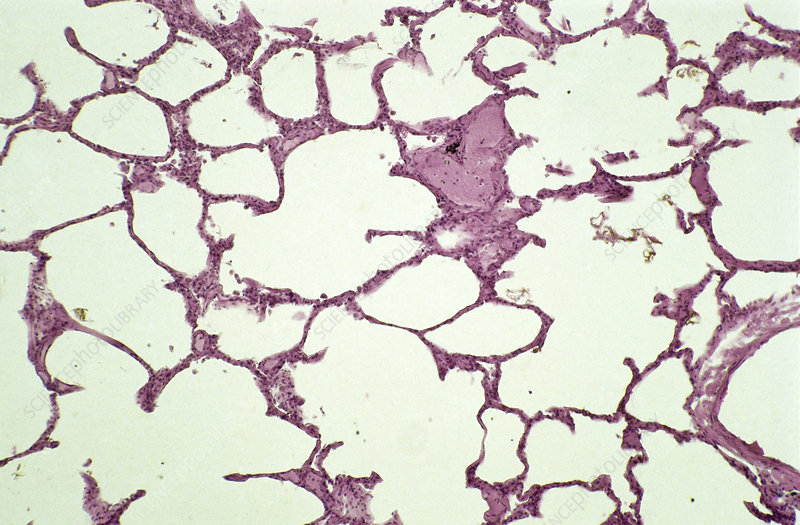 LM of a section of lung tissue