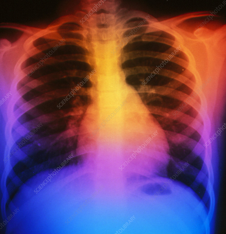 False-colour chest X-ray: normal 7 year-old child