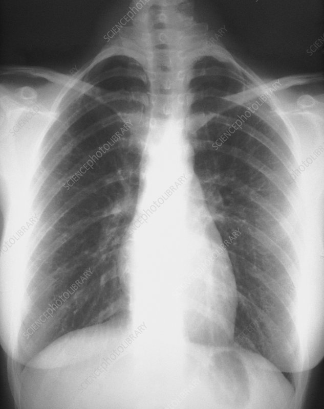 X-ray of chest showing healthy lungs and heart