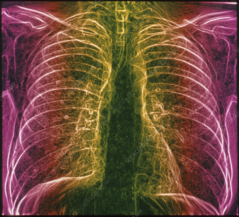 Coloured chest X-ray of healthy adult