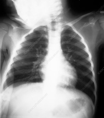 X-ray of a healthy three year old child's chest