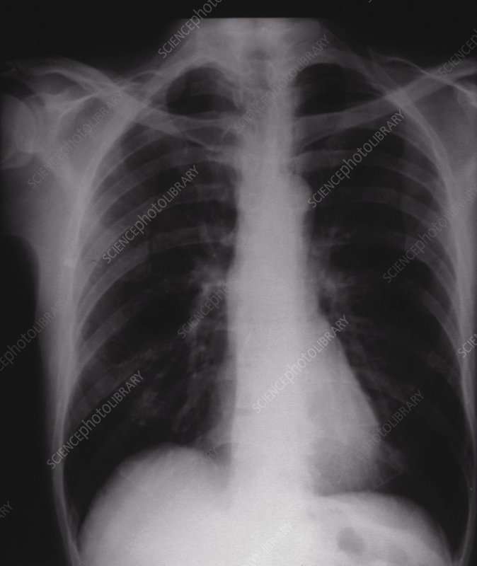 Chest X-ray showing normal lungs and heart
