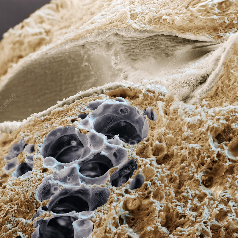 Lung bronchiole and alveoli, SEM