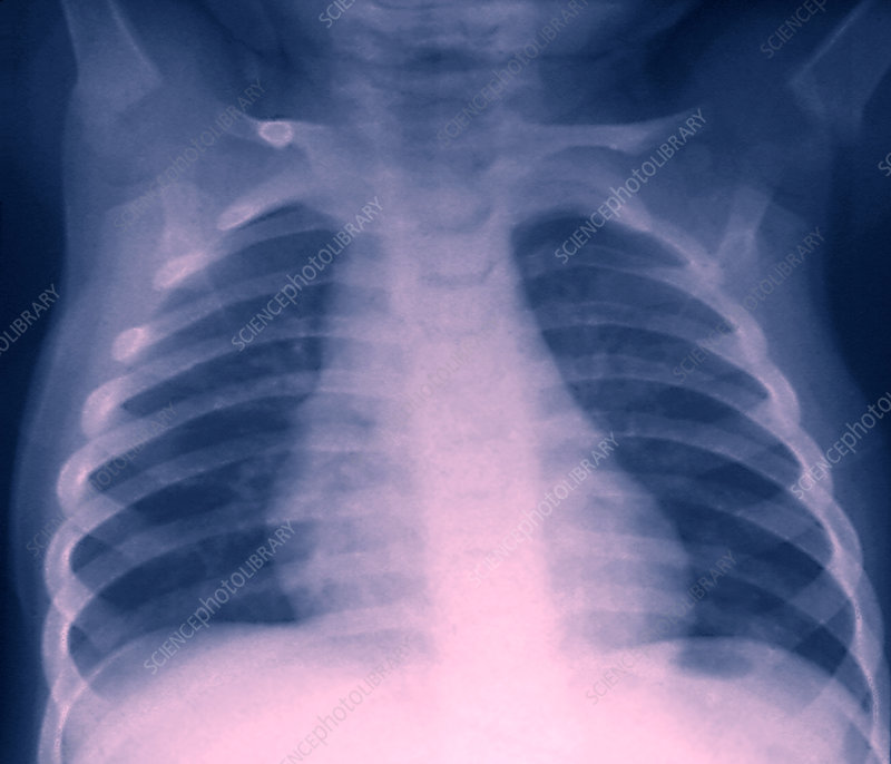 Healthy chest X-ray