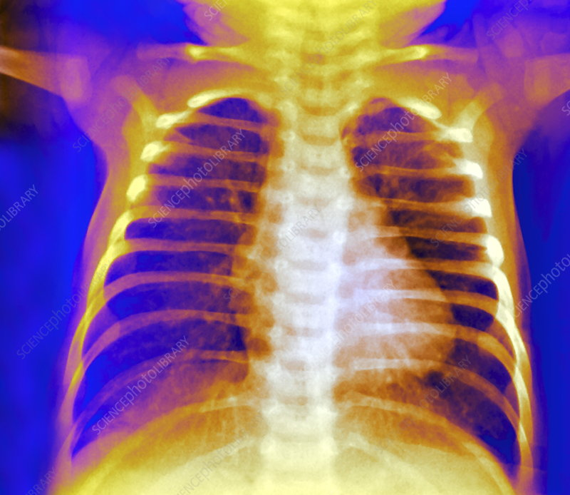 Healthy chest, X-ray