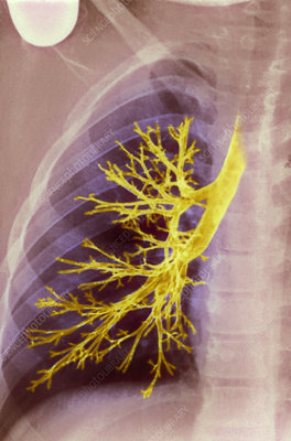Lung bronchioles, X-ray