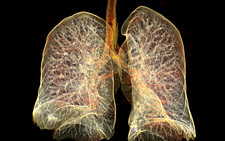 Lungs, CT scan