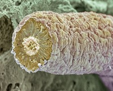 Sperm production site, SEM