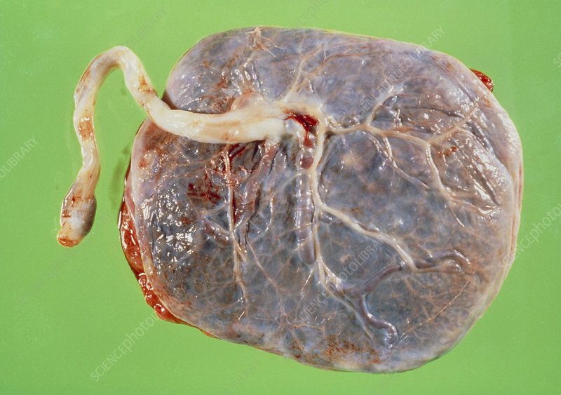 Gross specimen of normal placenta