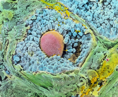 SEM of secondary follicles in the ovary