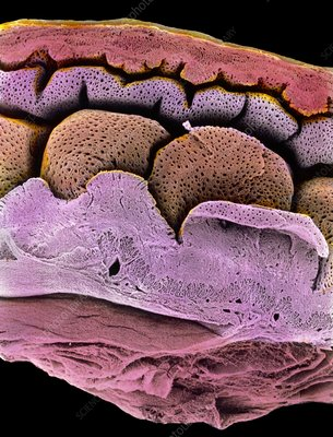 Coloured SEM of the uterus-oviduct junction