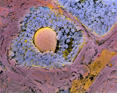 Coloured SEM of secondary follicles in the ovary