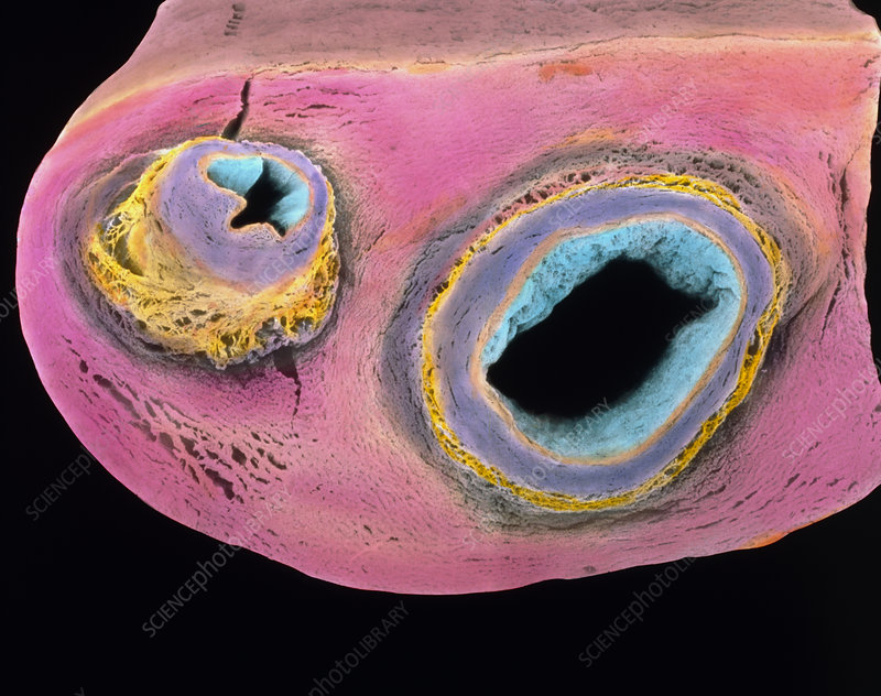 Colour SEM of cut human umbilical cord and vessels