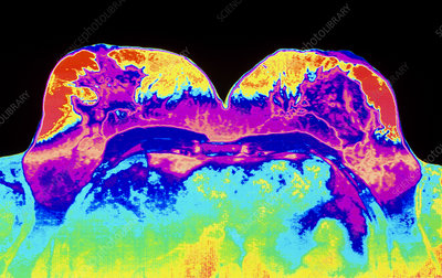Coloured MRI scan of healthy breasts of a woman