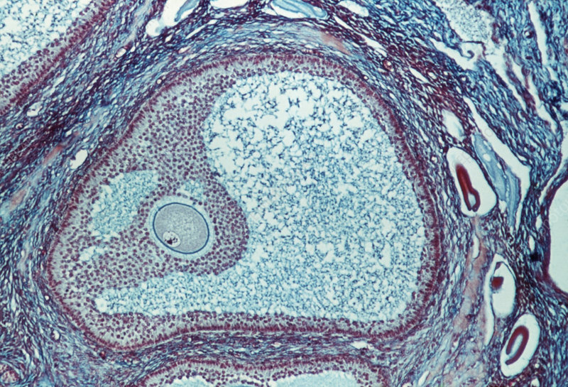 LM of a graafian follicle in the ovary