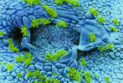 Coloured SEM of uterus wall (early proliferation)