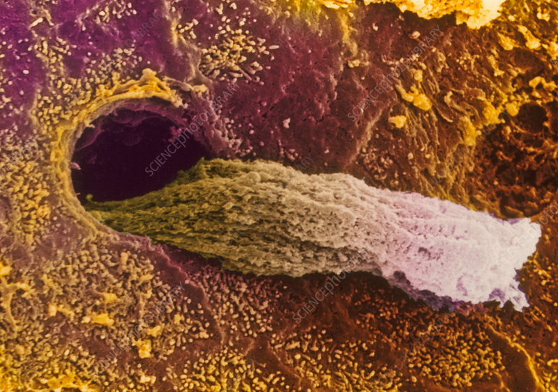Coloured SEM of a secreting uterine gland