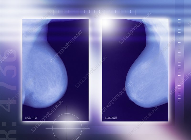 Healthy breasts, X-rays