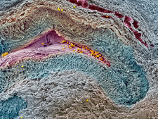 Collapsed ovarian follicle, SEM