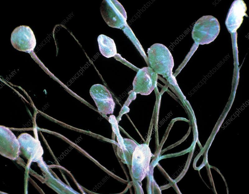 Sperm capacitation definition of sperm capacitation by
