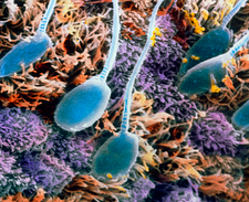 SEM of human sperm in the uterus