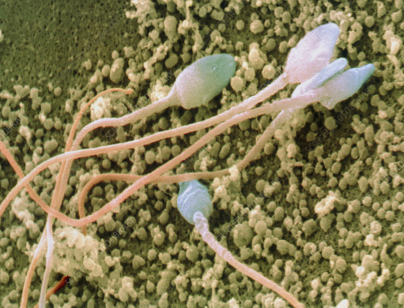 Coloured SEM of human sperm